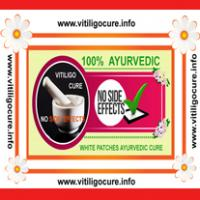 vitiligo cure guide